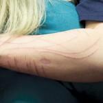 Autolesionismo: dal dolore emotivo a quello fisico